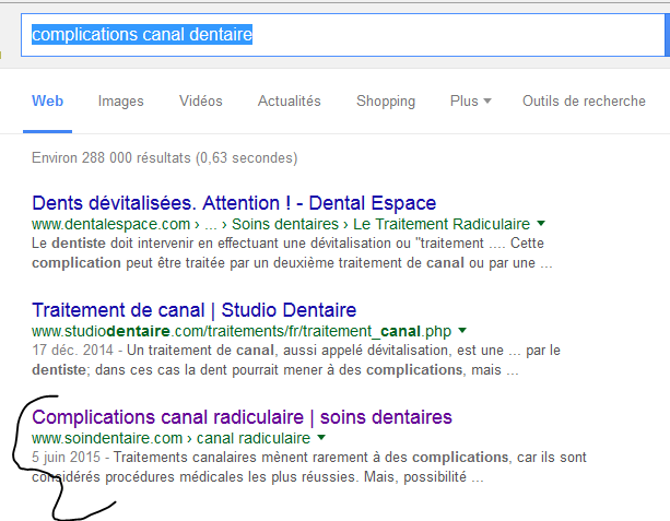 Canal dentaire